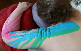Kinesio taping for the arm