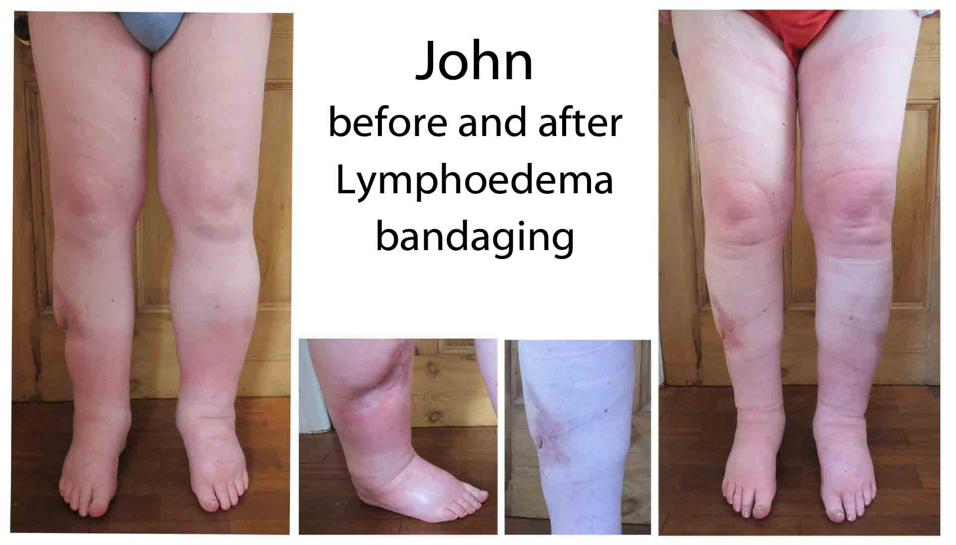 John before and after lymphoedema bandaging